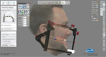 Whip Mix Announces New Bellus3D Dental Pro Face Scanning Solution