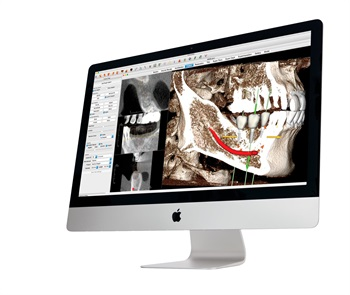 Anatomage Launches New 3D Dental Business