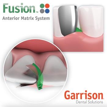 Garrison Releases Fusion Anterior Matrix System