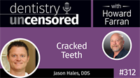 312 Cracked Teeth with Jason Hales : Dentistry Uncensored with Howard Farran