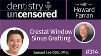 314 Crestal Window Sinus Grafting with Samuel Lee : Dentistry Uncensored with Howard Farran