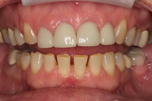 Aesthetic Full Mouth Rehab ... Where to Learn?
