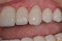 6 Guidelines to Avoid Post-Cementation Fracture