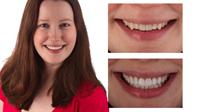 Dreaded Reverse Smile Line: Second Violation of Smile Design