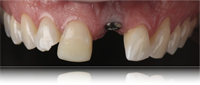 Mastering Dental Implant Restorations and Aesthetics - #smilestories