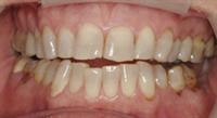 Phasing Treatment to Meet Patient's Goals - #smilestories