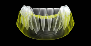 What is Digital Dentistry?