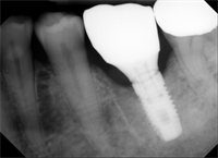 Implant Screw Loosening and Bruxism