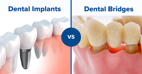 Ceramic Implants - A Bio-Friendly Alternative