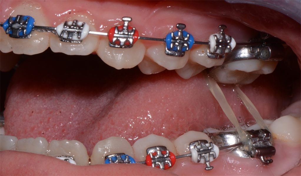 Ortho Case Finishing: The In-Treatment-Presenting-Posterior Crossbite