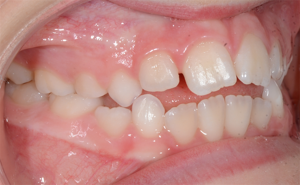 Orthodontics: How You Start Finishing at the Beginning and Reduce the Stress at the End for You and Your Patient