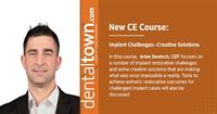 Dentaltown Learning Online...Implant Challenges--Creative Solutions. By Arian Deutsch, CDT