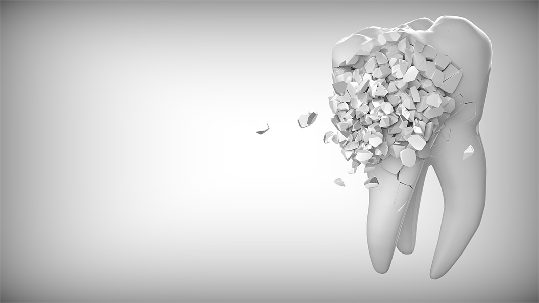 Fears of Tooth Extractions