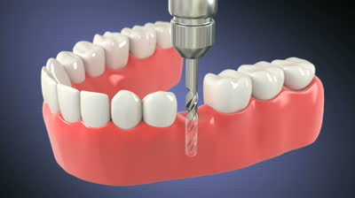 How Do Dental Implants Work And How Do Dental Implants Work?