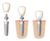 Expectations During and After Dental Implants