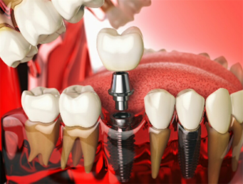 The Future Starts Today: 6 of the Most Important New Dental Implant Technology Trends