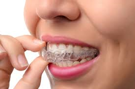 Why Orthodontists Are Now Recommending Invisalign Over Braces