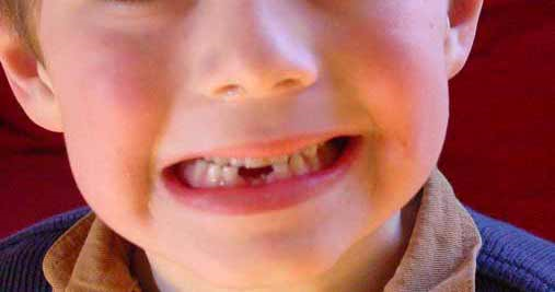 5 Reasons Why It's Important to Treat Tooth Loss