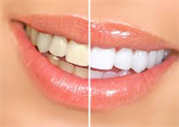 How to Find a Cosmetic Dentist in Your Area