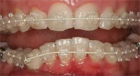 Alternatives to Traditional Braces and Reasons for Them