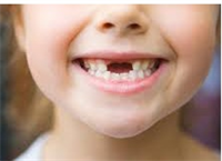 Caries in Children