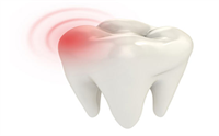 What Can You Do About Impacted Wisdom Teeth?