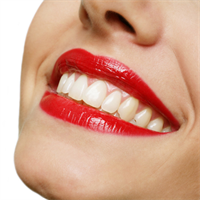 What Are Popular Teeth Whitening Treatments?