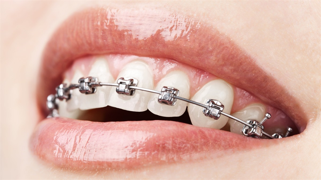 5 Top Benefits of Wearing Dental Braces