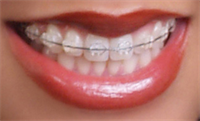 When should you opt for the use of Invisalign?