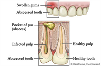 Understanding Dental Abscess