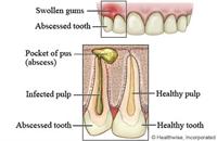 Understanding Dental Abscess