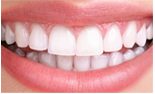 What are Protective Dental Sealants?