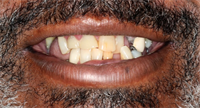 15 Oral Hygiene Tips To Help Engage Your Patients!!