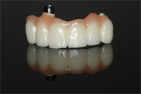3 Guidelines to Determine When to Use Prosthetic Gingiva!