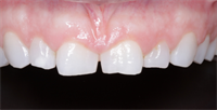 How Do You Know When Your Patient Needs Crown Lengthening?