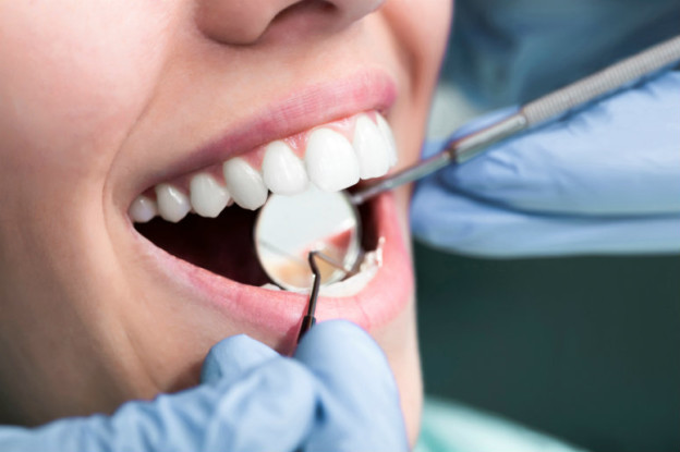 Cosmetic Dentist In Manchester Knows The Right Bleaching Mix For Teeth Whitening