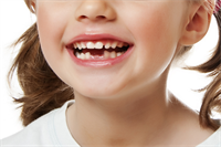 Why Kids Dentistry is Important?