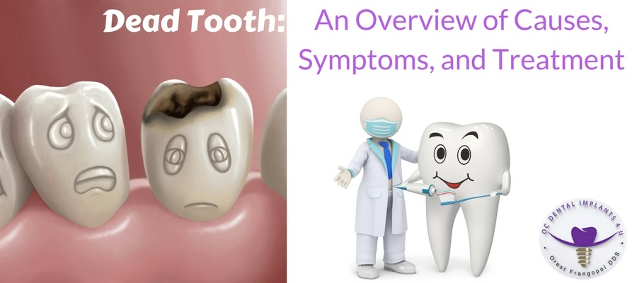 Dead Tooth: An Overview of Causes, Symptoms and Treatment