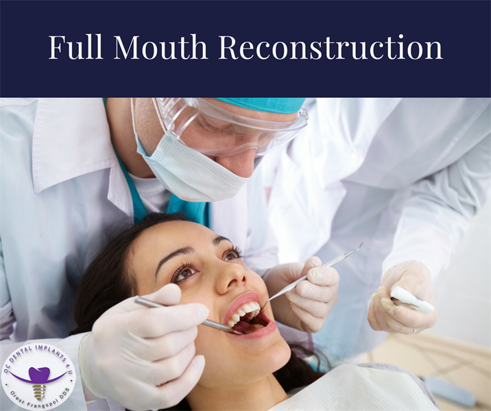 All About Full Mouth Reconstruction