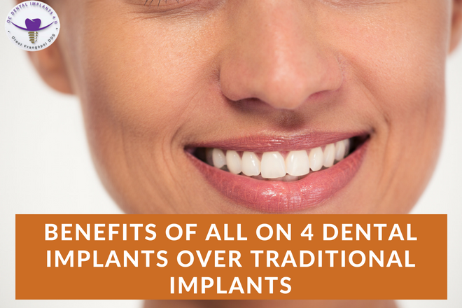 Benefits of All on 4 Dental Implants over Traditional Implants
