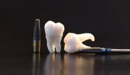 Dental implants for patients with peridontitis