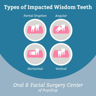 Four Common Types of Impacted Wisdom Teeth | Tacoma Oral Surgery