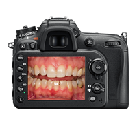 Dental Photography Interview With Dr. Dawn Wehking