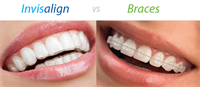 4 Things You Must Know Before Opting For Invisalign