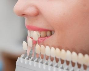 Regaining confidence through teeth color restoration.