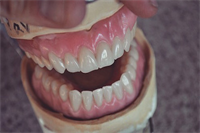 Denture Reline: Why Do You Need It?