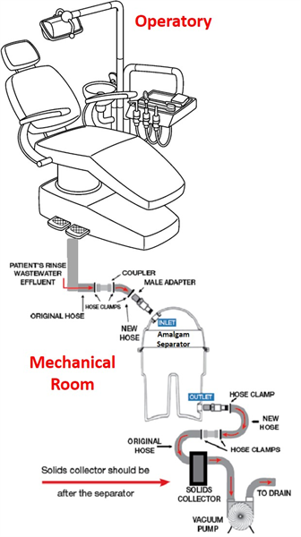 """M.A.R.S Answers the Question """"What is an Amalgam Separator?"""" – Part 2"""