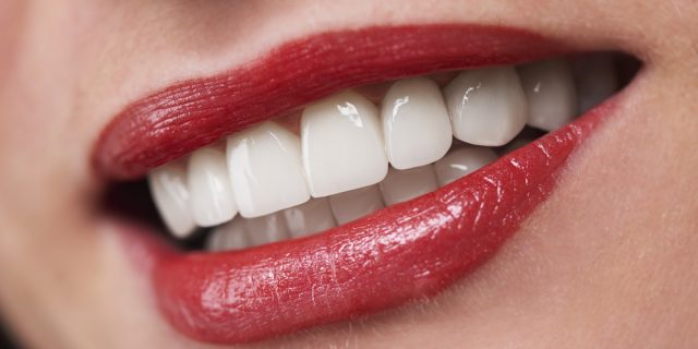 5 Simple Reasons Why You're a Prime Candidate for All on Four Implants
