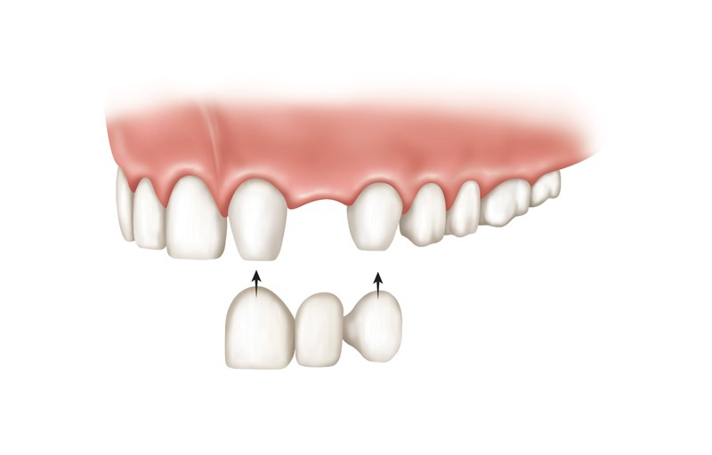 5 Ways to Identify the Right Substitute for Missing Teeth