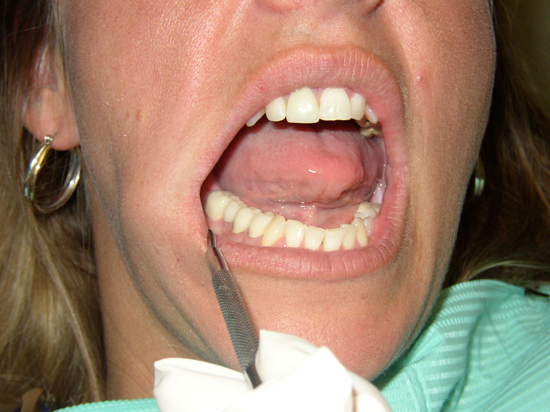 How to Remove Calculus from Teeth? - How to Cure Teeth? - Dentaltown